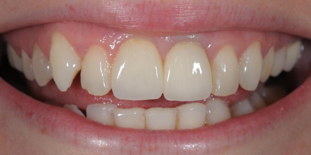 Протезирование двух центральных резцов цельнокерамическими коронками E.Max и отбеливание зубов