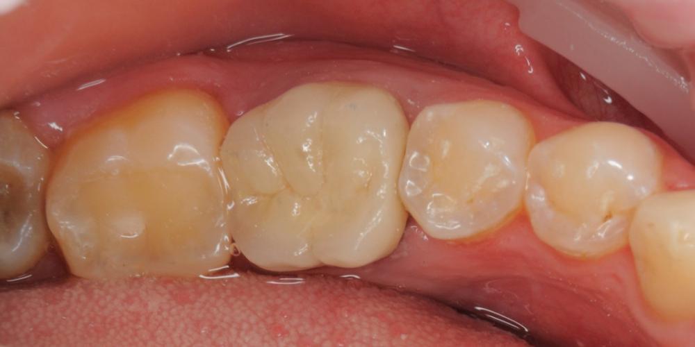 Произвели восстановление функции жевательного зуба разрушенного на 80%