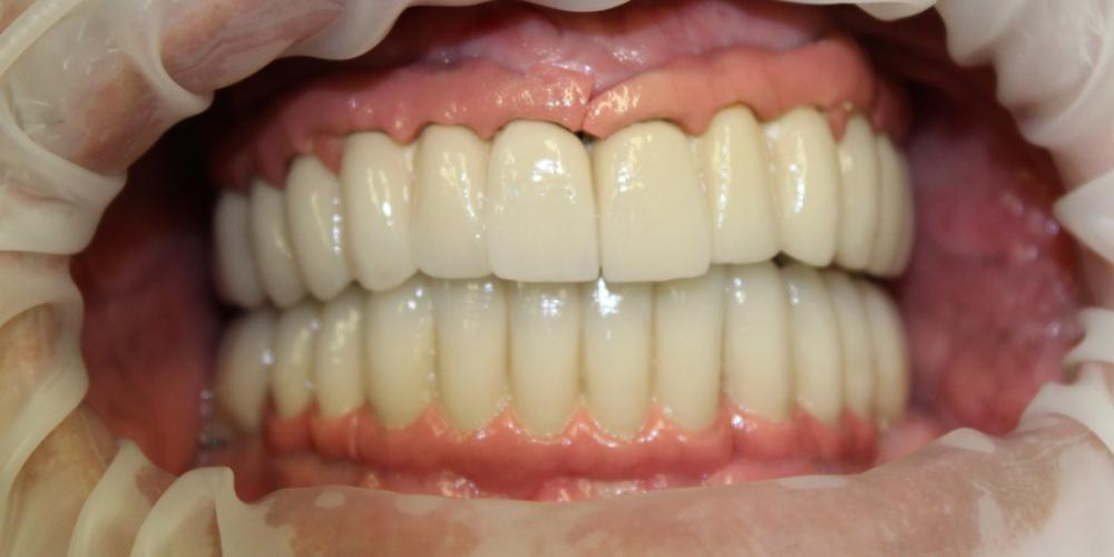 Фото после протезирования на имплантах. Имплантация и протезирование полной челюсти