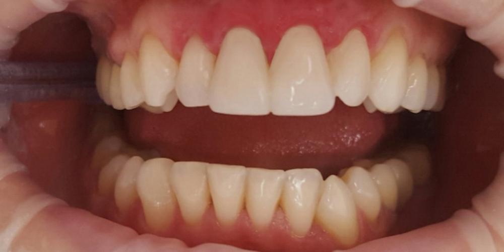 Реставрация двух передних зубов верхней челюсти современным композиционным материалом