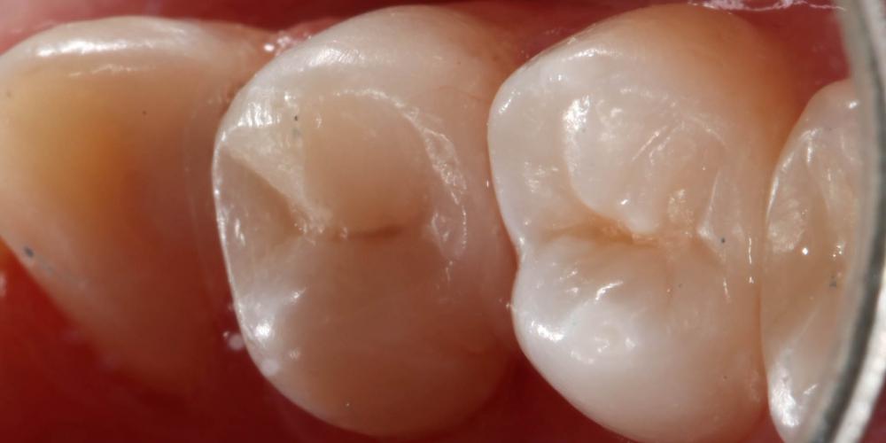 Кариозная полость на контактных поверхностях жевательного зуба