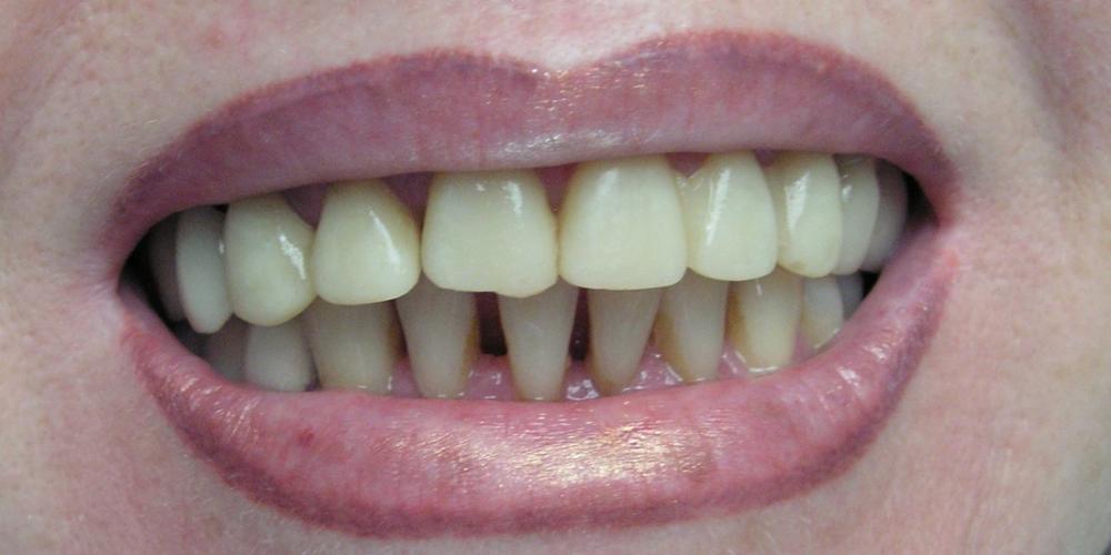 Преображение улыбки винирами E-max