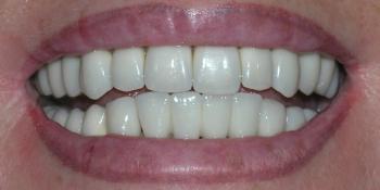 Преображение улыбки винирами E-max  фото после лечения