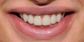 Установка шести виниров из керамики E-MAX на передние зубы фото после лечения