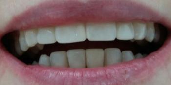 Реставрация 4х зубов верхней и нижней челюсти фото после лечения