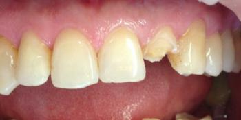 Реставрация переднего зуба, разрушенного более чем на 50% фото до лечения