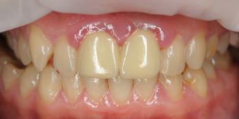 Протезирование двух центральных резцов цельнокерамическими коронками E.Max и отбеливание зубов фото до лечения