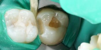 Лечение кариеса, реставрация зуба фото до лечения
