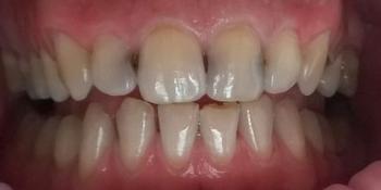 Лечения кариеса четырех передних зубов верхней челюсти современным композиционным материалом фото до лечения
