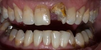 Жалоба на эстетический дефект в зоне улыбки фото до лечения