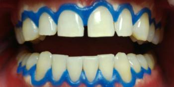Профессиональное отбеливание зубов щадящей системой отбеливания Amazing White фото после лечения
