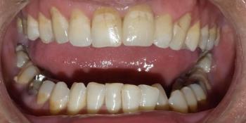 Жалоба на эстетический дефект в зоне улыбки фото после лечения