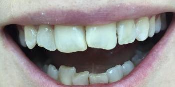 Реставрация 4х зубов верхней и нижней челюсти фото до лечения