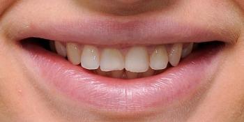 Установка шести виниров из керамики E-MAX на передние зубы фото до лечения