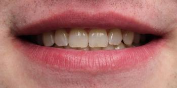 Отбеливание зубов в зоне широкой улыбки фото до лечения