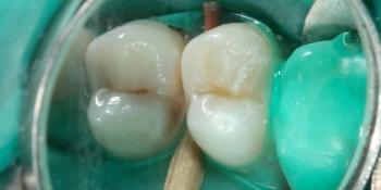 Кариозная полость на контактных поверхностях жевательного зуба фото до лечения