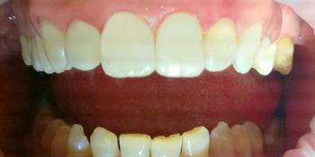 Лечения кариеса четырех передних зубов верхней челюсти современным композиционным материалом фото после лечения