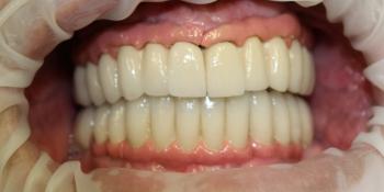 Имплантация и протезирование полной челюсти фото после лечения