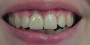 Имплантация и протезирование переднего зуба фото после лечения