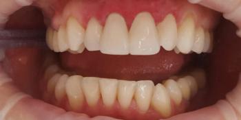 Реставрация двух передних зубов верхней челюсти современным композиционным материалом фото после лечения