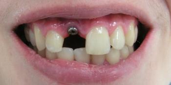 Имплантация и протезирование переднего зуба фото до лечения