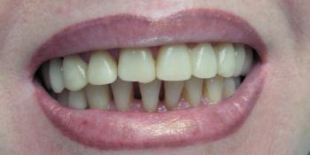 Преображение улыбки винирами E-max  фото до лечения