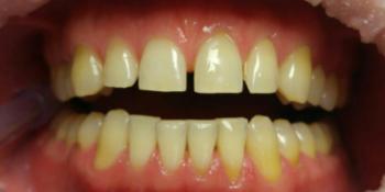 Профессиональное отбеливание зубов щадящей системой отбеливания Amazing White фото до лечения
