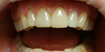 Реставрация зубов верхней челюсти фото после лечения