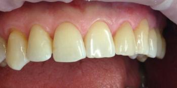 Реставрация переднего зуба, разрушенного более чем на 50% фото после лечения
