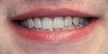Отбеливание зубов в зоне широкой улыбки фото после лечения